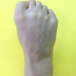足の指,グーパー運動,ヒール