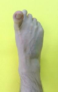 足指,トレーニング,大阪