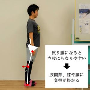 O脚,内股,反り腰,骨盤,股関節,膝,腰